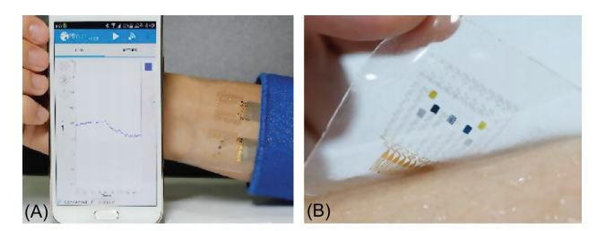 Demonstration of the wearable diabetes monitoring and therapy system in vivo